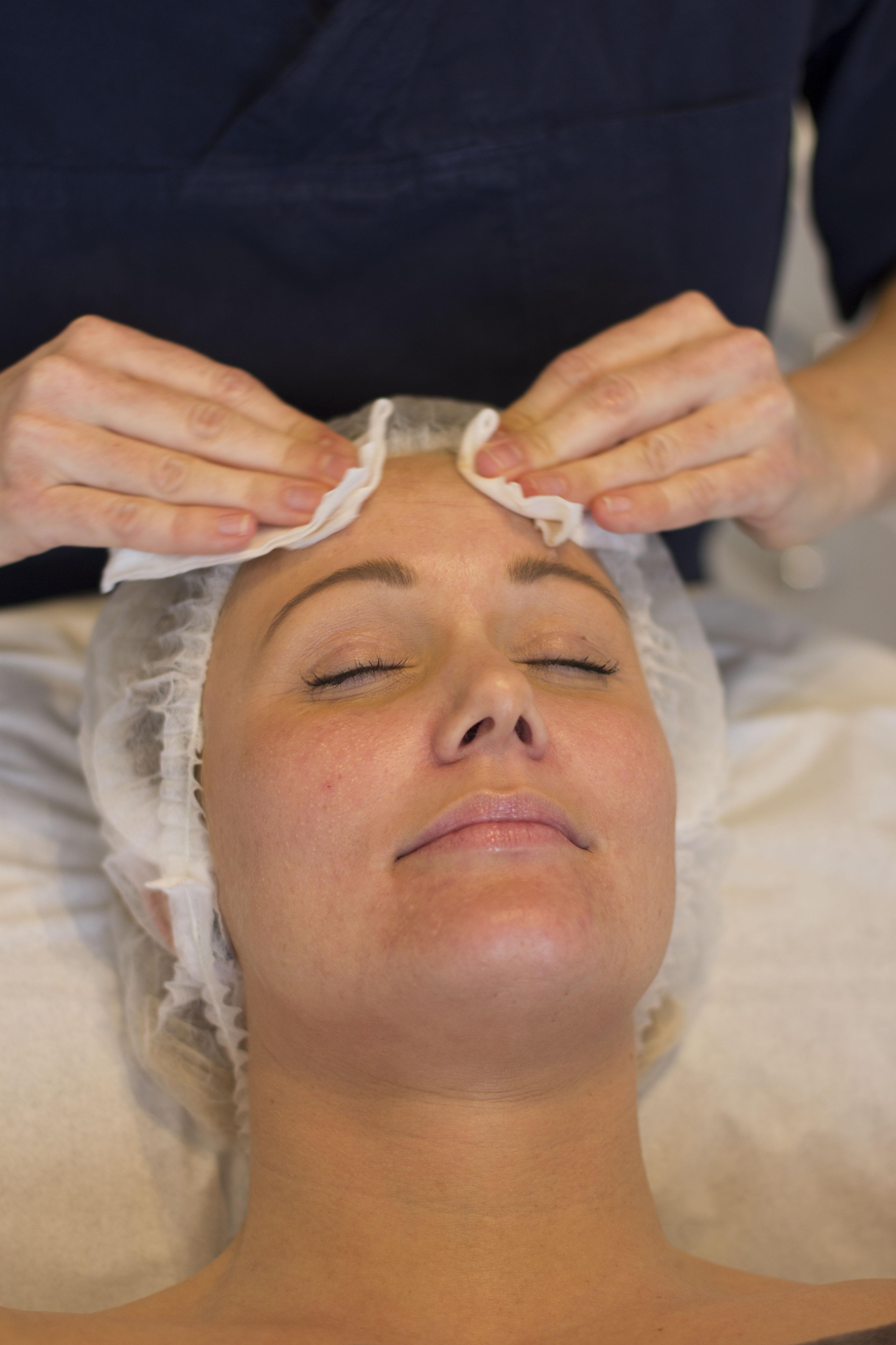 ansigtsbehandling acne